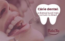 Cárie dental: a doença bucal mais comum no Brasil